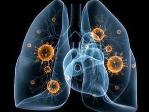 Mycoplasma Pneumoniae [MP] IgM, IgG, IgA, EIA