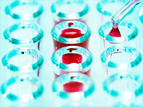 Infectious Mononucleosis Latex Test